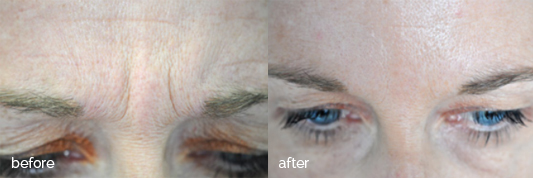 Before and after - Forehead - Wisdom Dental