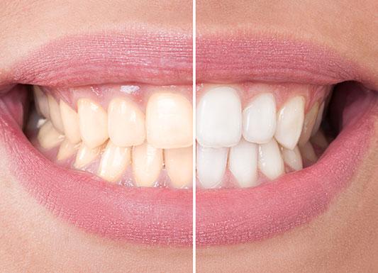 Teeth Whitening - Wisdom Dental