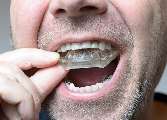 Occlusal Splint - Wisdom Dental