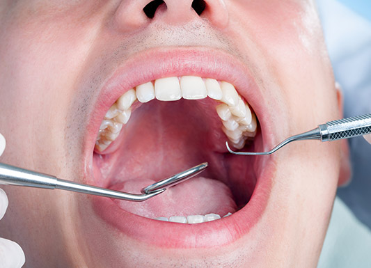 Amalgam to Composite - Wisdom Dental